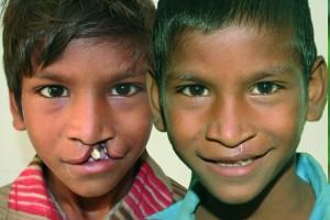 Kind mit Gaumenspalte vor und nach der Operation